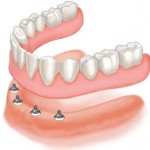 implants used to replace a full lost arch of teeth