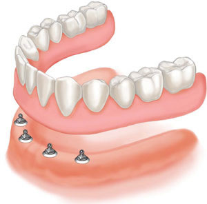 Ask The Dentist – Sore Gums and Dentures