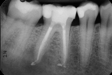 root canal and tooth