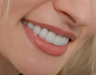 Brighten Up Your Smile With Porcelain Veneers