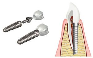 Dental implant in the jaw bone