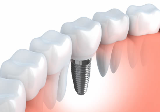 Putting Trust In Your Replacement Teeth With Implants
