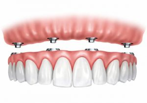 Implant stabilised arch of teeth