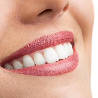 Dental Veneers – The Original 'Hollywood Smile'