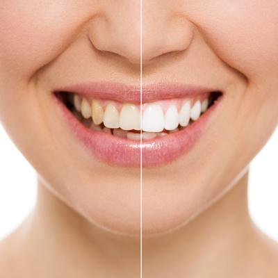 Give Your Teeth An Aesthetics MOT!