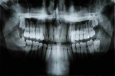 Xray showing wisdom teeth coming through